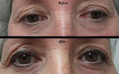 Microblading in Eau Claire, Wisconsin